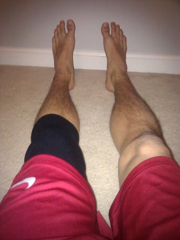 knee pain patellar tendonitis